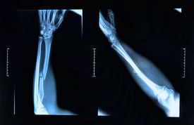 stock photo of fracture  - x - JPG