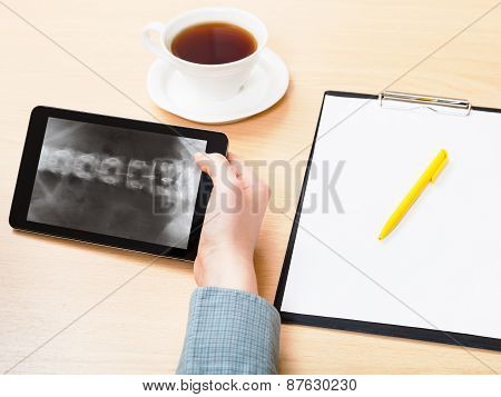 Medic Analyzes Vertebral Column On Tablet Pc