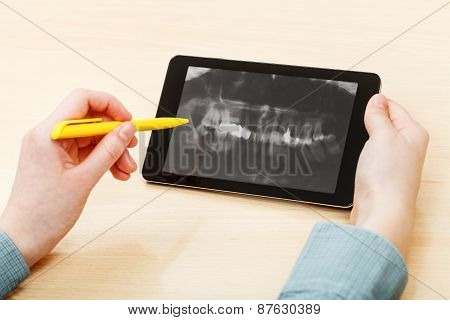 Student Analyzes Human Jaws On Tablet Pc