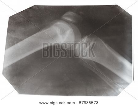X-ray Photo Of Human Knee Joint Isolated