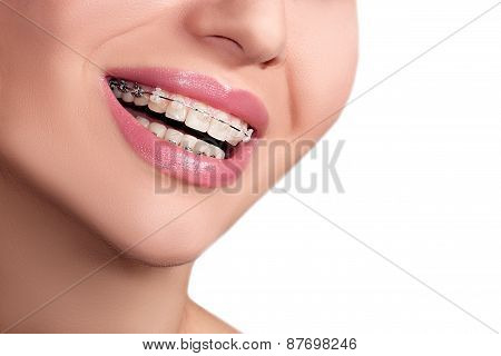 Braces Teeth Female Smile