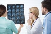 pic of magnetic resonance imaging  - Three experienced physicians checking head magnetic resonance image - JPG