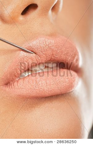 Injection In The Lip. Closeup of a needle giving enhancing treatment for fuller lips.