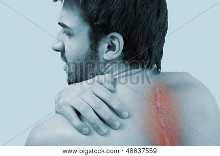 Young male having backache after scoliosis operation.