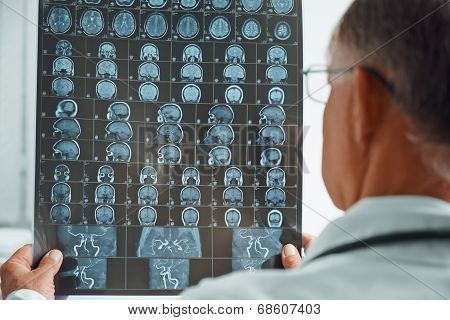 Unrecognizable Older Doctor Examines Mri Image