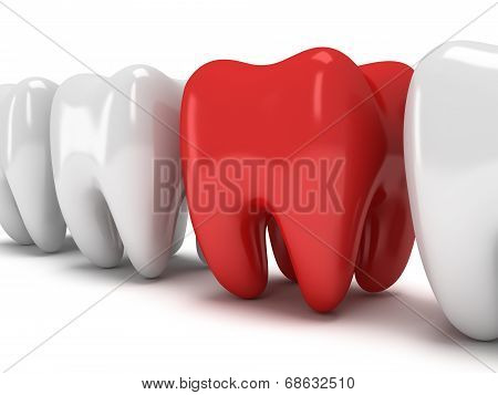 Aching Tooth In Row Of Healthy Teeth