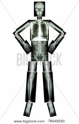 Human Bone Stand And Akimbo