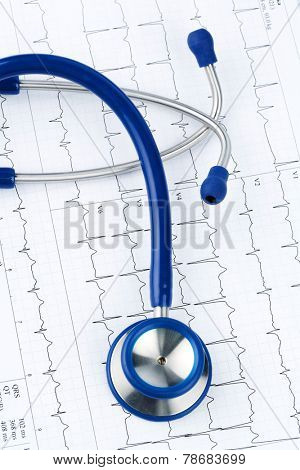 stethoscope and electrocardiogram, symbolic photo for heart disease and diagnosis