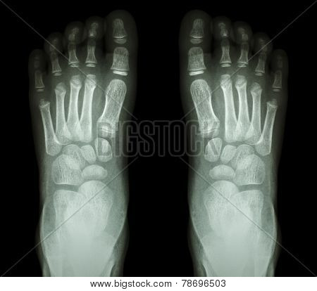 film x-ray show both foot of child