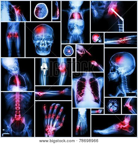 Collection Of X-ray Multiple Part Of Human,orthopedic Operation And Multiple Disease