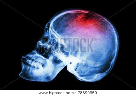 X-ray skull lateral with