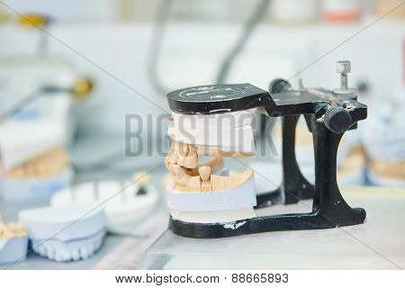 prosthetic dentistry concept. Articulator with dental prosthesis model in laboratory