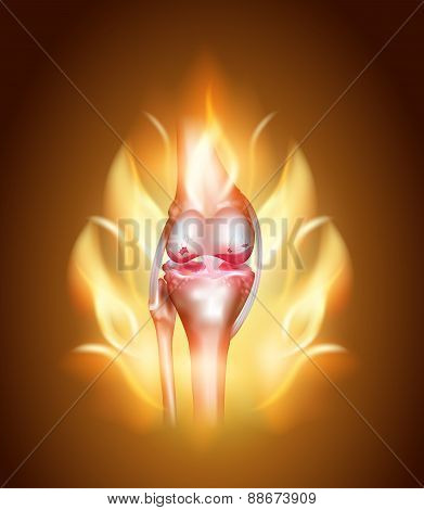 Knee Joint Pain Concept, Burning Knee