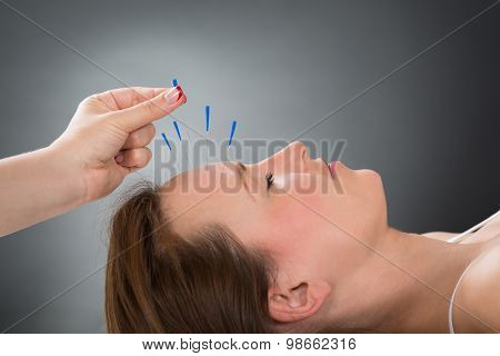 Person Putting Acupuncture Needle On Face Of Woman