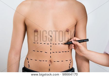 Person Hands Drawing Correction Lines On Abdomen