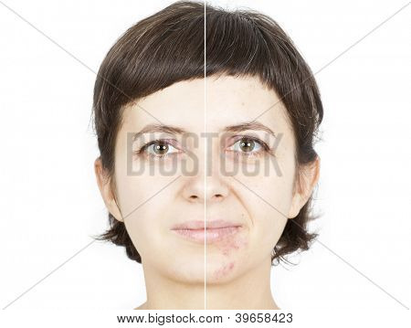 Face of young woman before and after skin healing. Concept of cosmetic effects, treatment and skin care.