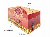 picture of wart  - medical illustration of a section of a wart - JPG
