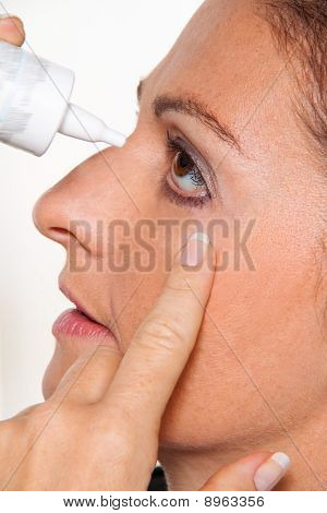Women With Allergies And Eye Drops. Hay Fever
