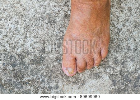 Bare Foot Of Old Man
