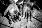 picture of callus  - Worker is showing his chapped hands dirty and injured palms - JPG
