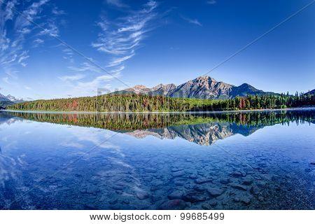 Canadian Landscape: Patricia Lake at Jasper National Park