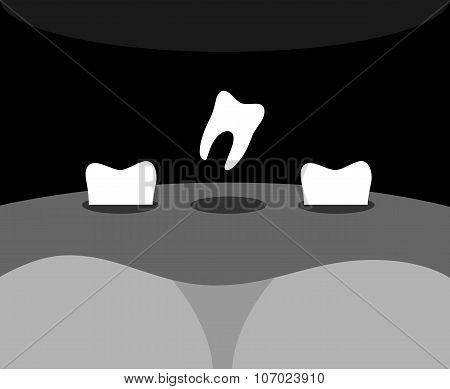 Teeth Falls Black