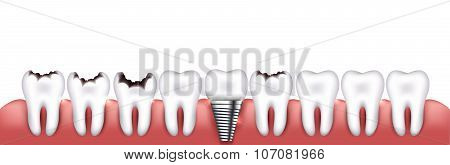 Various Teeth Conditions