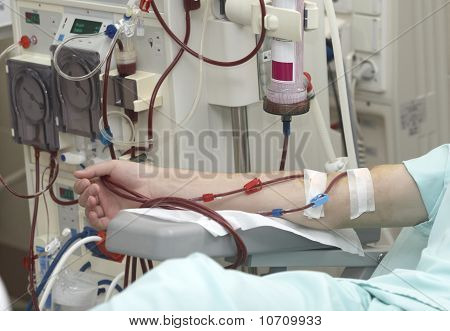 Dialysis Health Care Medicine Kidney