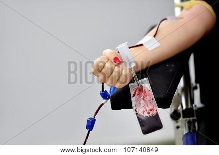 Blood Donor Hand With Fist Closed