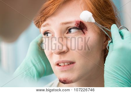 Injured Female Having Professional Care