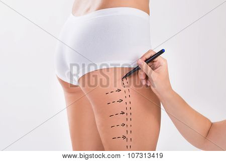 Surgeon Preparing Woman For Liposuction Surgery On Thigh
