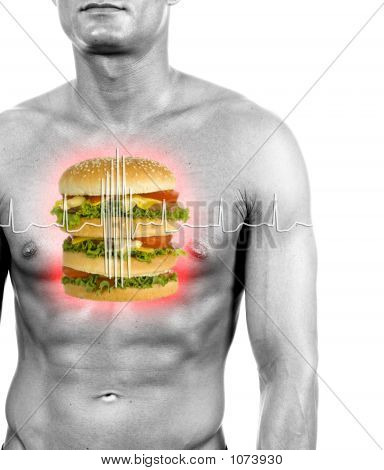 Unhealthy Food Reason Of Heart Attacks