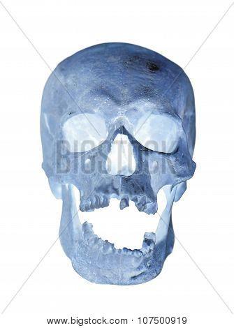 Human Skull X-ray