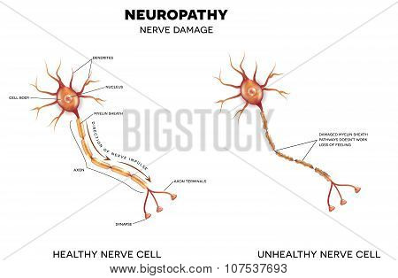 Neuropathy, Nerve Damage