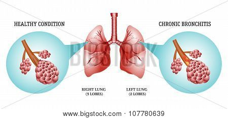 lungs, the disease is bronchitis