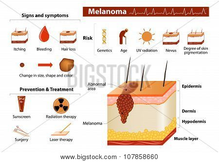 Skin Cancer Infographics