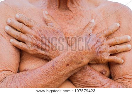 Closeup Asian Senior Man Chest With Texture Of Two Brown Wrinkle Hands, Isolated On White Background