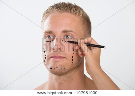 Man With Correction Mark For Plastic Surgery
