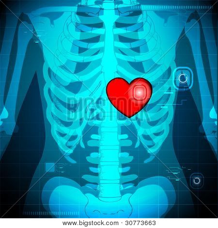 illustration of xray of human showing glowing heart behind rib