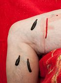 picture of leech  - photo of leeches planted on patient and sucking blood - JPG