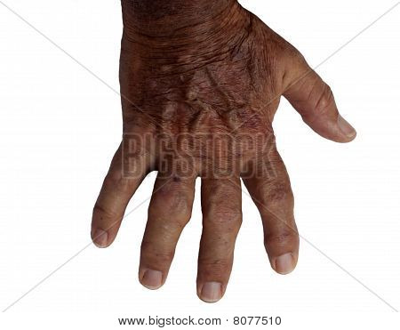 Elderly Male Hand With Rheumatoid Arthritis