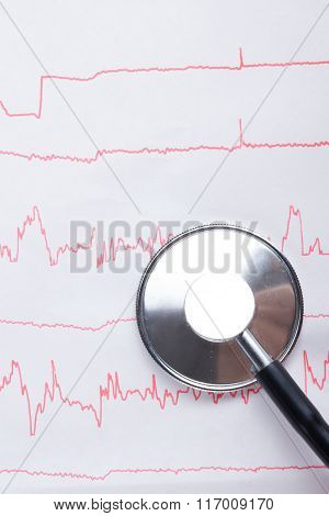 Cardiogram pulse trace and stethoscope concept for cardiovascular medical exam, closeup