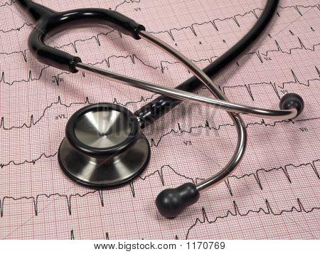 Cardiac Chart