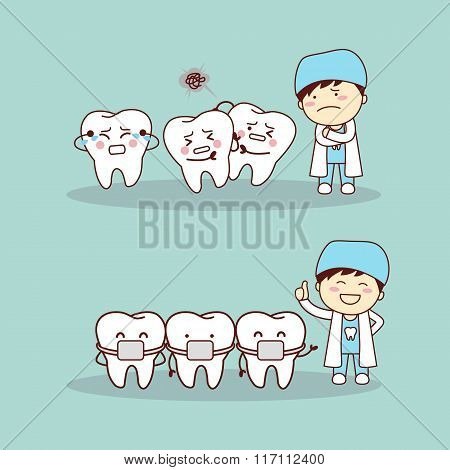 Cute Cartoon Tooth Braces