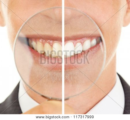 Smiling man with magnifying glass zooming on his smile, teeth: before and after concept
