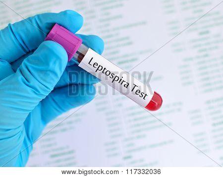 Leptospira test