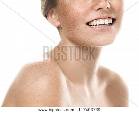 Teeth Smile Mouth Young Beautiful Freckles Woman Face Portrait With Healthy Skin
