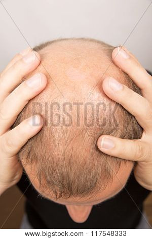 man baldness alopecia hair loss