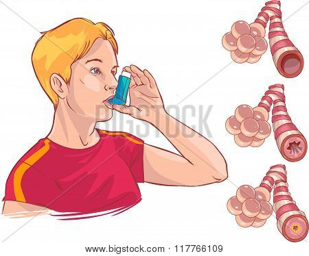 Vector Illustration Of A  Medical Anatomy Of Asthma
