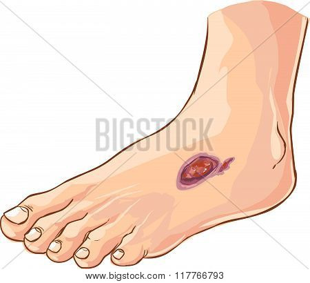 Vector Illustration Of A Medical Diabetic Foot